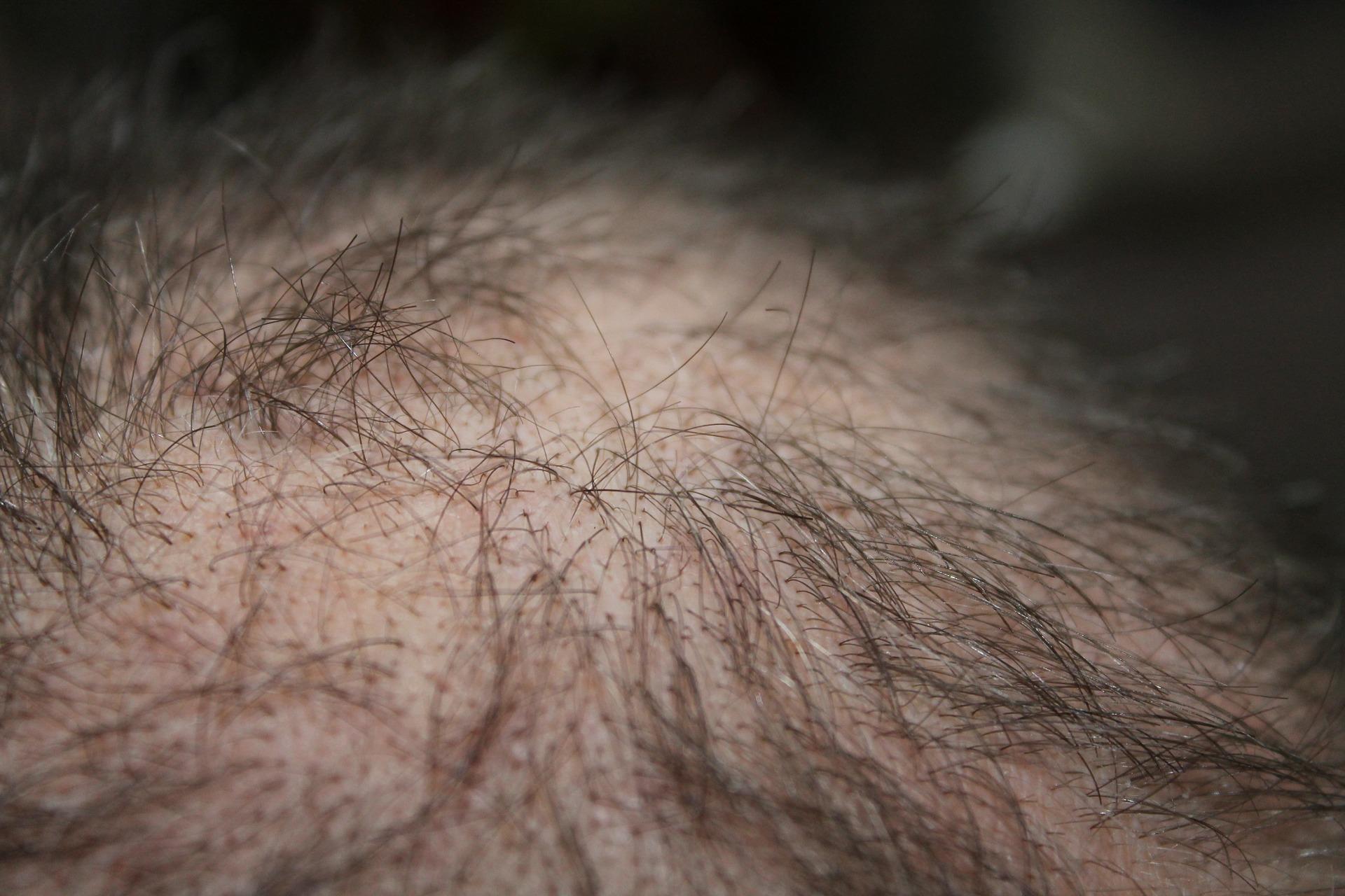 opadanje-kose-kod-muškaraca
